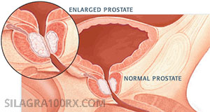 Benign Prostatic Hyperplasia and Sildenafil Citrate